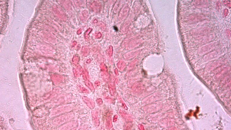 histología íleon